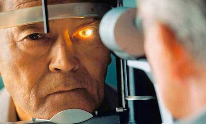 Анальгетик не следует принимать пациентам с глаукомой