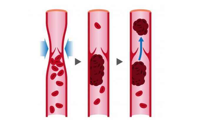 При закупорке крупных артерий, затрудняющей отток крови препарат не назначают