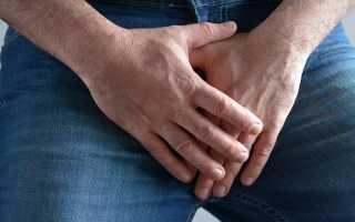 Симптомы и лечение острого цистита у мужчин