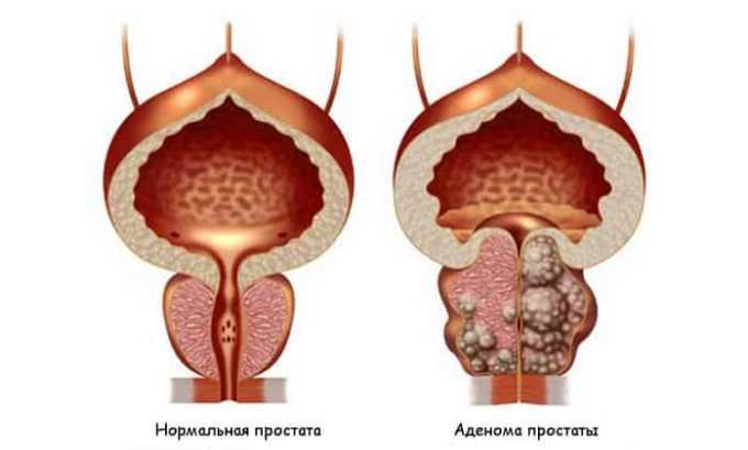 Препарат назначают при при хроническом простатите