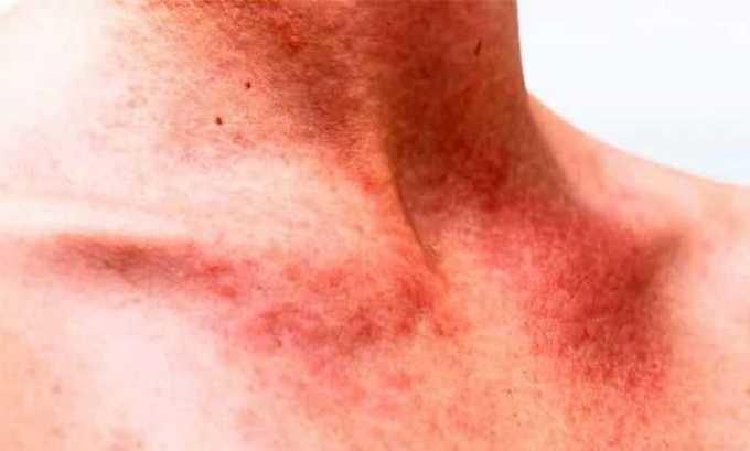 Лекарство применяют при инфекции мягких тканей/кожи