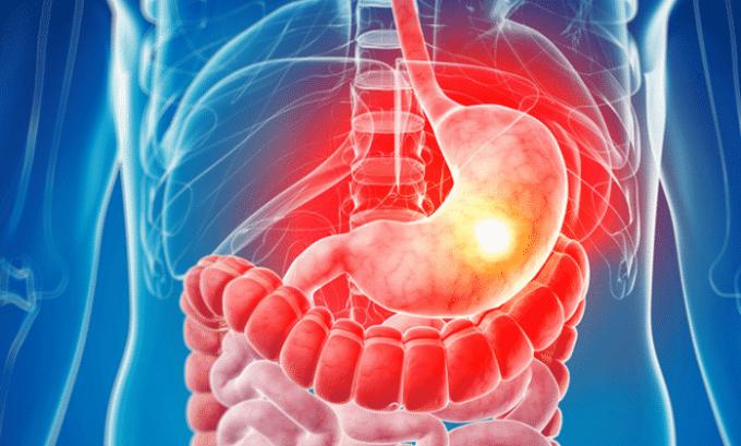 Обострение язвенной болезни желудка является противопоказанием для приема Нурофена