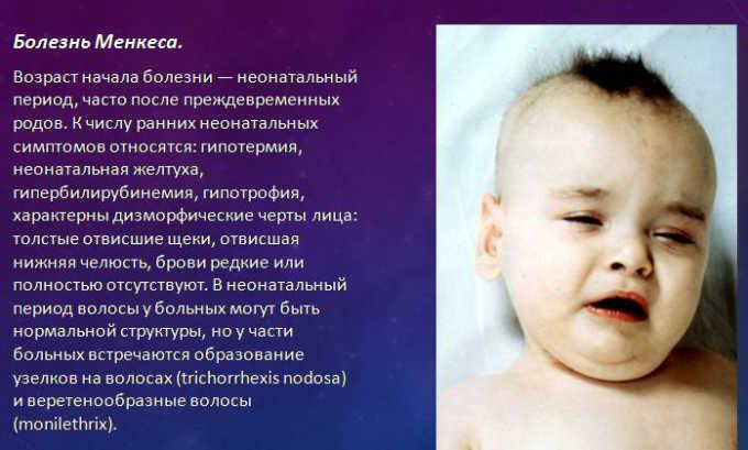 Препарат назначают при болезни Менкса
