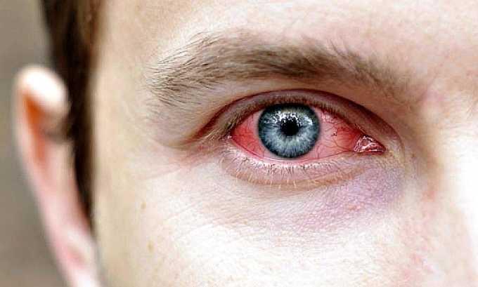 Лекарственное средство не применяется при глазной инфекции