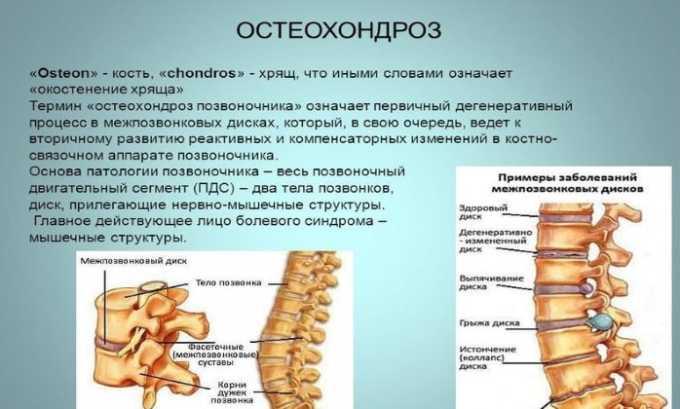 Таблетки назначают при остеохондрозе