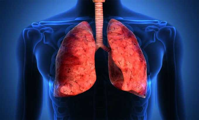 Таривид назначается при поражениях дыхательной системы