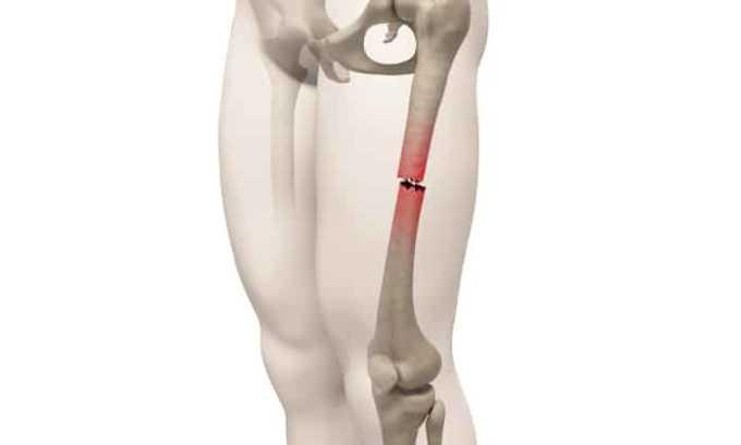 При переломе кости препарат не назначают