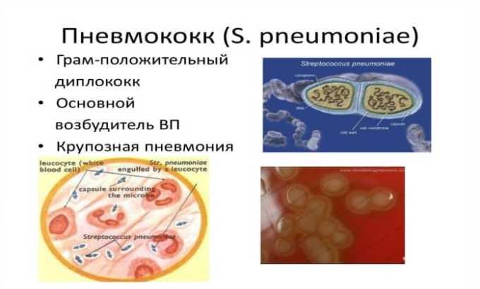 Особой эффективностью препарат отличается в отношении пневмококка