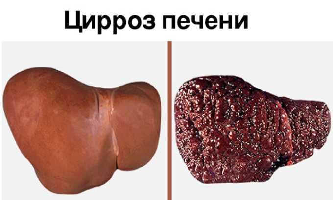 От цирроза печени, протекающего на фоне отеков и/или скопления жидкости в брюшной полости, принимают препарат Верошпирон 100