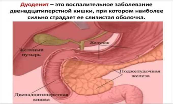 Противовоспалительное средство нельзя принимать при воспалении двенадцатиперстной кишки