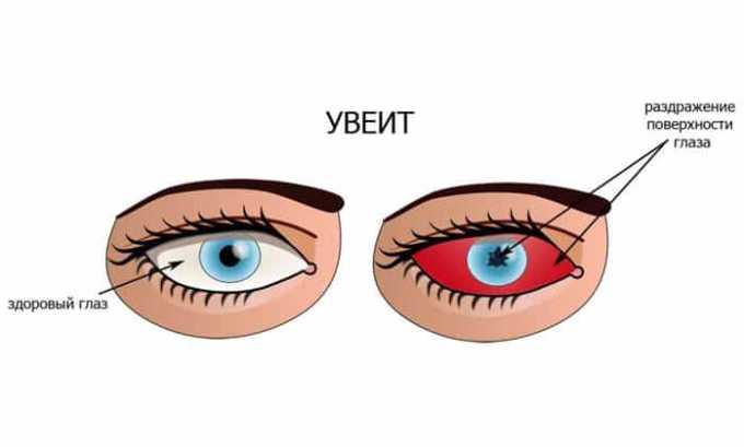 Лекарство применяют при увеите с угрозой нарушения зрительной функции
