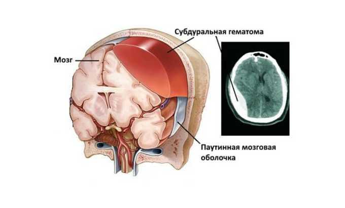 При использовании средства побочным эффектом может быть возникновение субдурального кровотечения