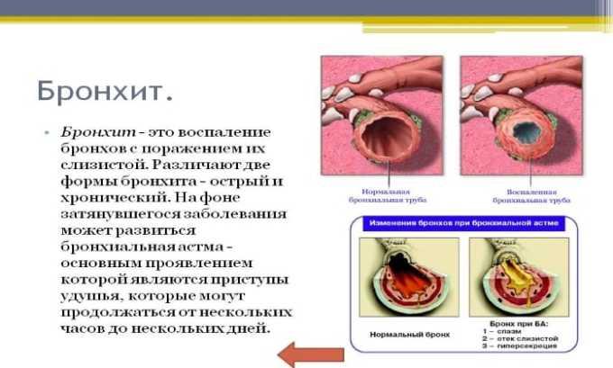 Препарат применяется при лечении бронхита