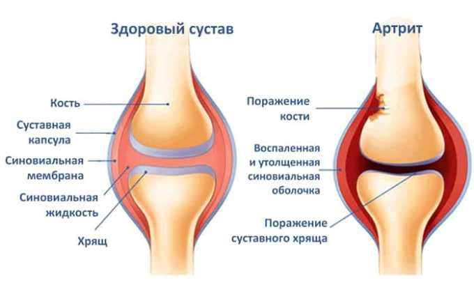 Вольтарен показан при артрите
