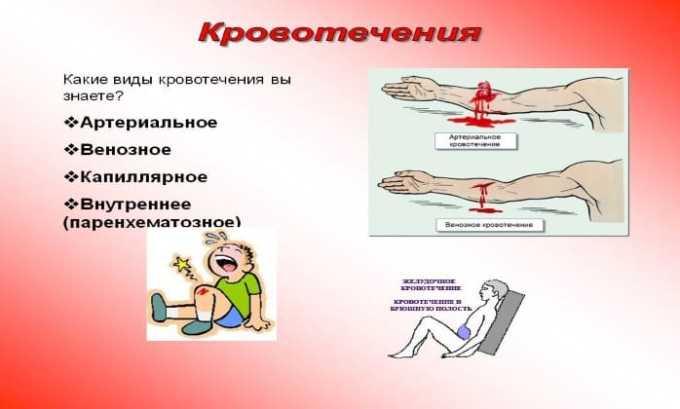 Нурофен не назначается пациентам с кровотечениями