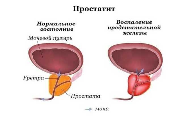 Препарат помогает пациентам, которые страдают от хронического простатита