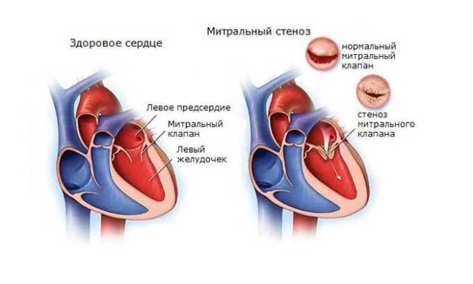 Показанием к осторожному применению препарата является митральный стеноз, сопровождающийся нарушением гемодинамики