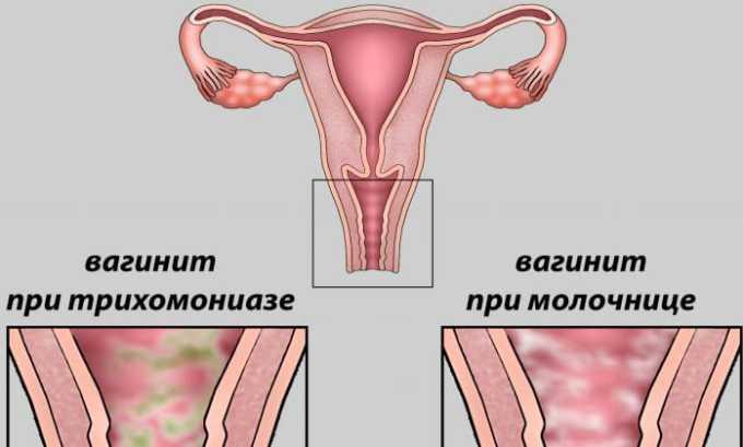 Терапевтический курс может спровоцировать развитие вагинита