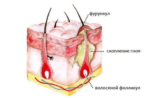 Амоксициллин применяется при инфекционных поражениях мягких тканей