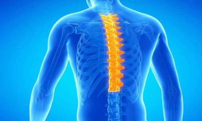 Прием Ибупрофена является целесообразным при остеохондрозе