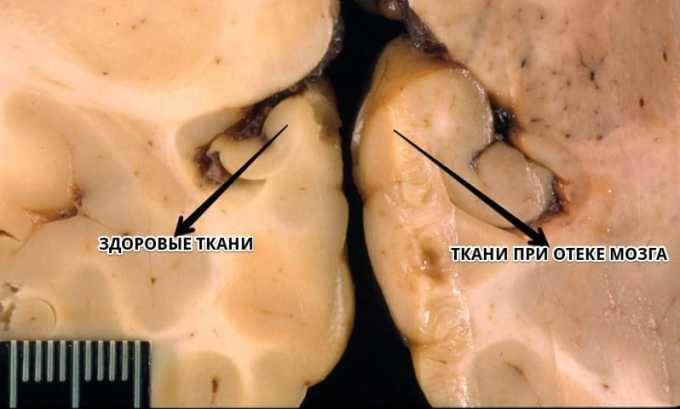 Препарат применяется при отеке мозга