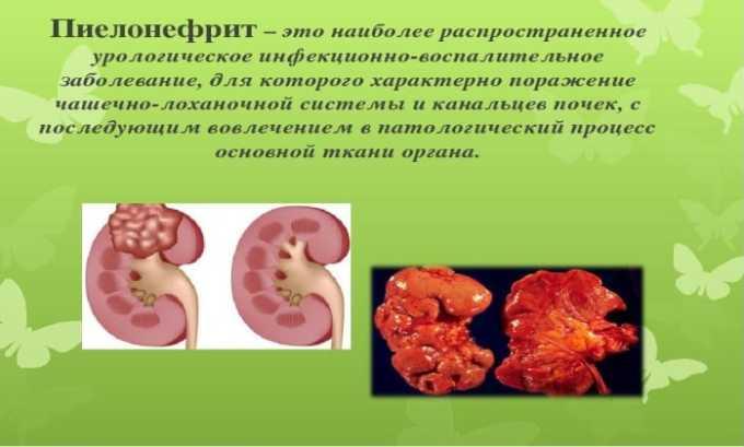 Препарат применяется при лечении пиелонефрита