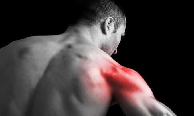 Препарат назначается при боли в мышцах
