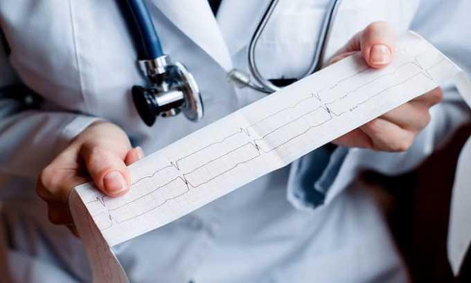 При приеме Берлиприла могут возникать нарушения функций сердечно-сосудистой системы