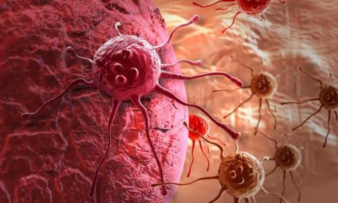 Лечение препаратом фебрильной нейтропении с наличием опухолей злокачественного характера