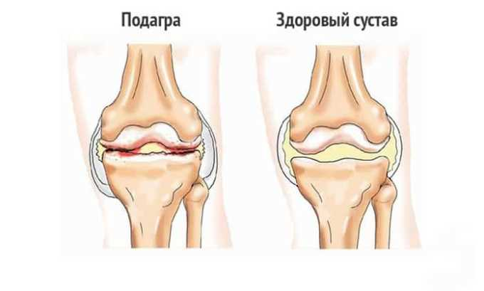 Препарат в виде инъекций назначается при острых приступах подагры