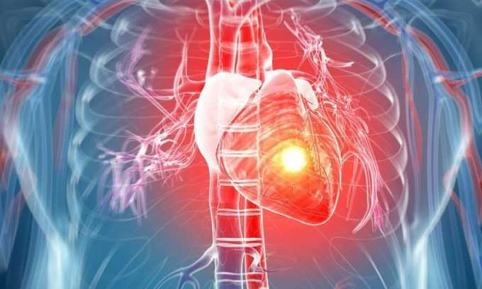 Побочным действием от препарата может быть остановка сердца