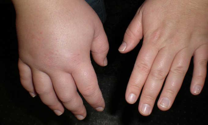 При отеках Фуросемид 40 усиливает выведение лишней жидкости из организма
