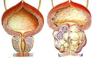 Аденома простаты: причины, симптомы, лечение, последствия