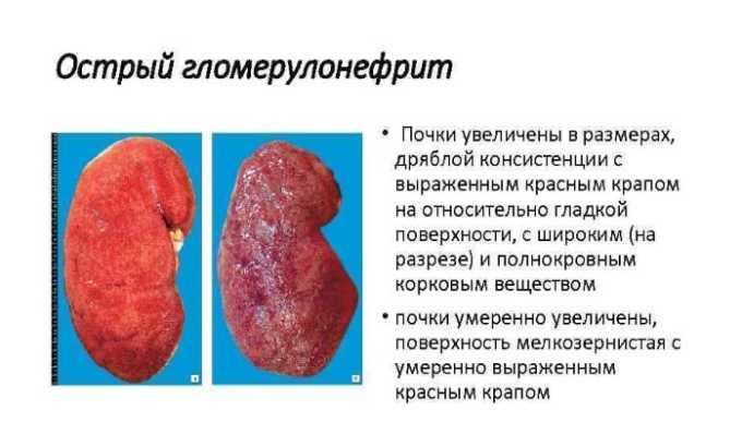 Гормон необходим для терапии острой гломерулонефрии