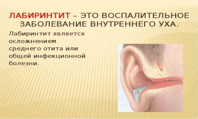 Препарат используется для лечения воспалительных процессов во внутренних отделах слухового прохода