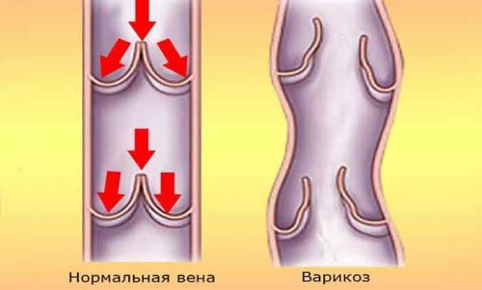 Аспирин часто назначают для лечения варикоза