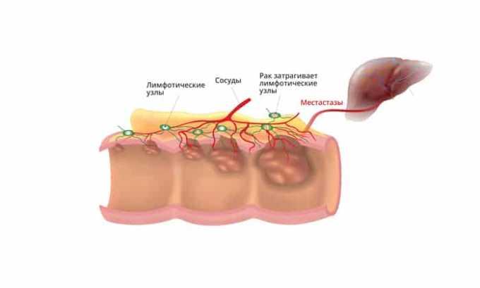 Онкологические заболевания можно лечить Дексаметазоном
