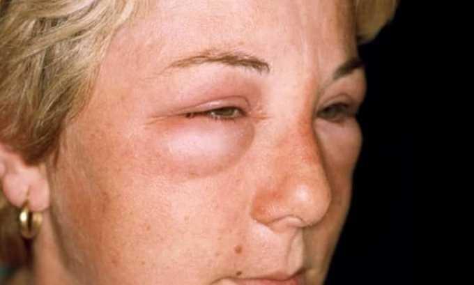 Во время лечения могут появиться отёки на лице
