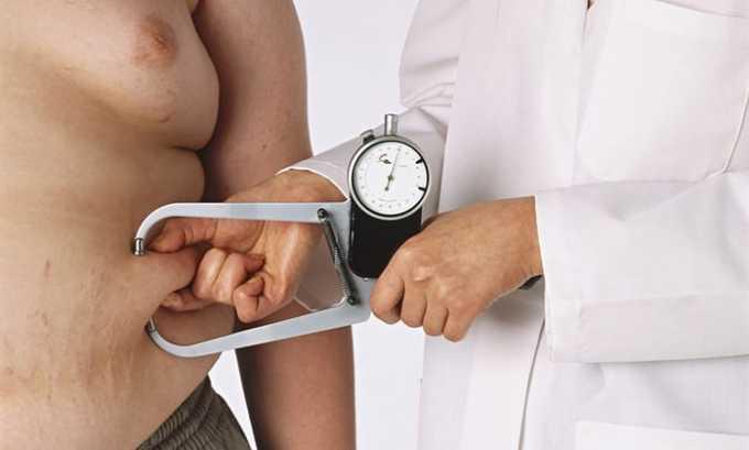 Ожирение является противопоказанием к применению мази Кортизон