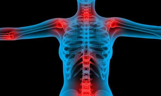 Флемоксин назначают при воспалениях суставов
