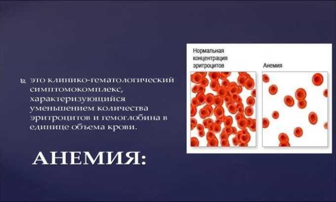 Препарат применяют при анемии