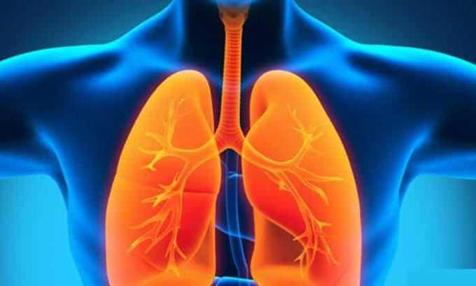 Медопенем назначают при пневмонии