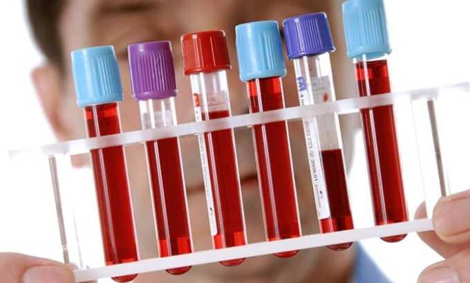 Обший анализ крови показывает степень развития воспаления