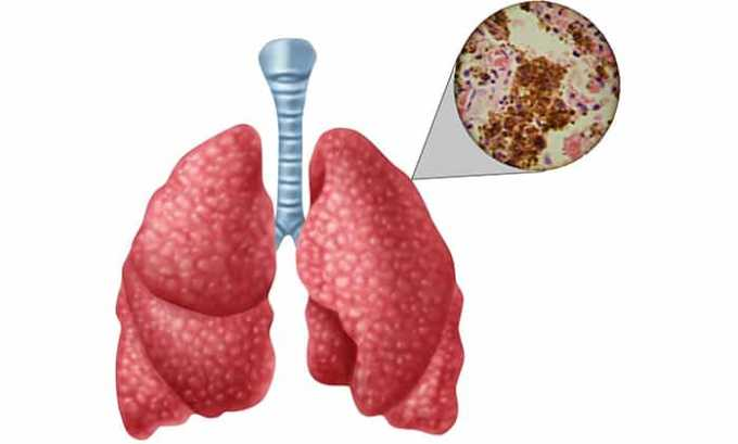 Ронколейкин назначают взрослым при туберкулезе легких