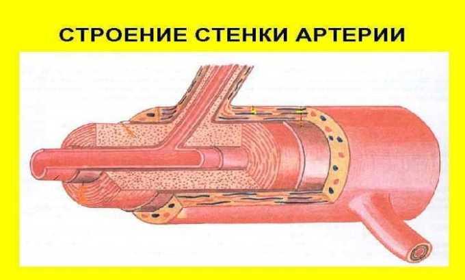 Депо-Медрол назначают при воспалениях артериальных стенок