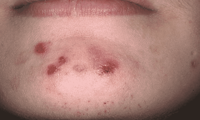 Аугментин провоцирует появление аллергической реакции в виде сыпи и крапивницы