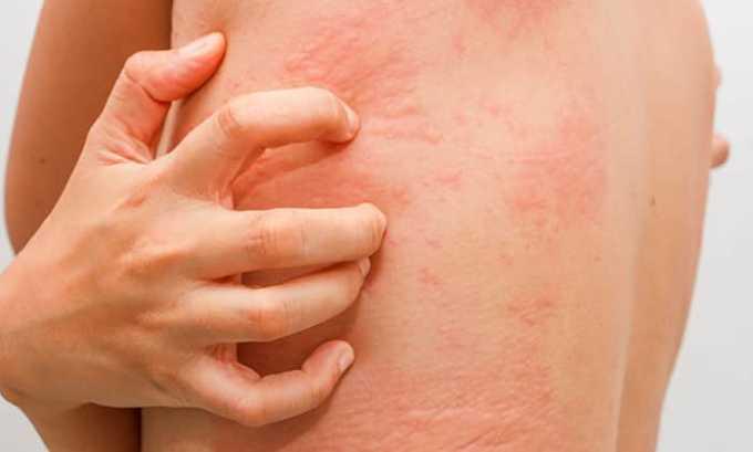 Возможен побочный эффект в виде аллергической реакции: сыпь на коже, зуд, крапивница