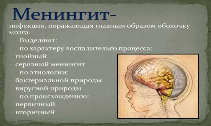 Препарат назначают при менингите