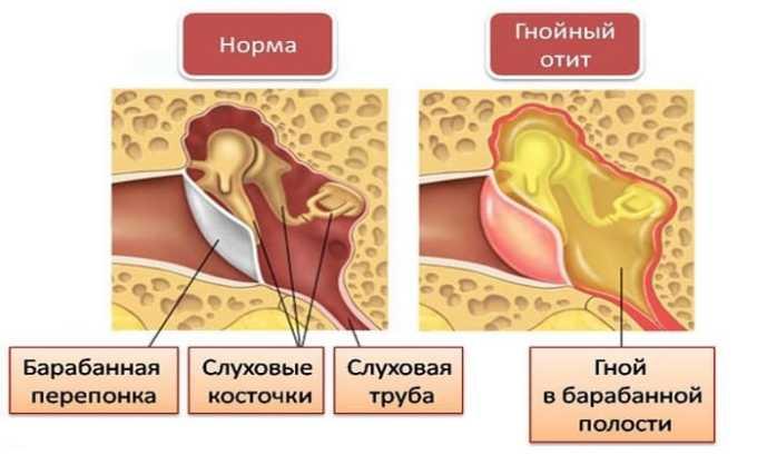 Арлет используют при остром и хроническом среднем отите