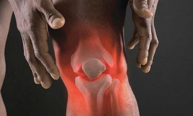 Таривид назначается при попадании инфекции в костные и суставные ткани